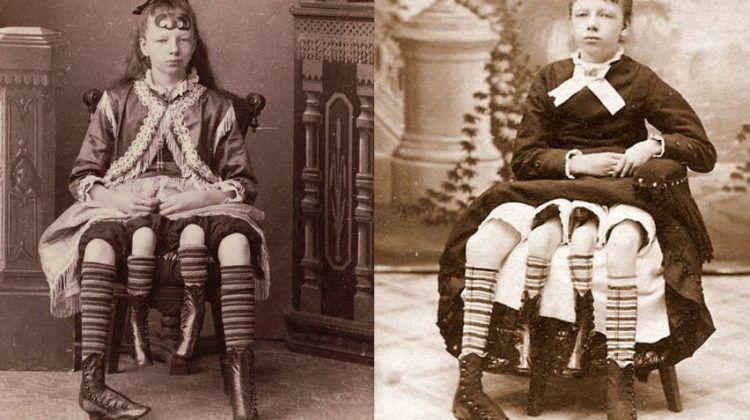 10 personnes qui ont été dans des cirques humains à cause de leur difformité ! Quotes